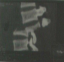 Vertebral Fracture xray