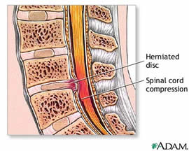 herniated disc with compression