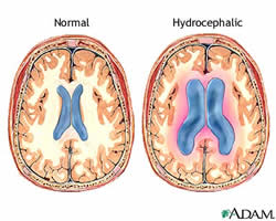 normal vs hydrocephalus comparison