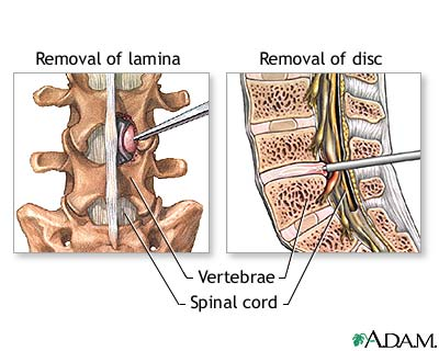 removal of lamina and disc