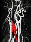 Watershed stroke (carotid stenosis)