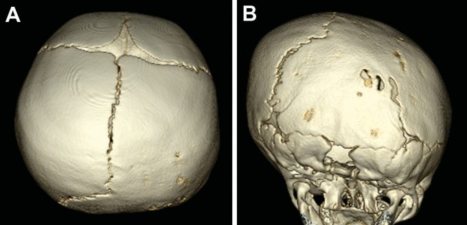 Example image of a skull with lambdoid craniosynostosis