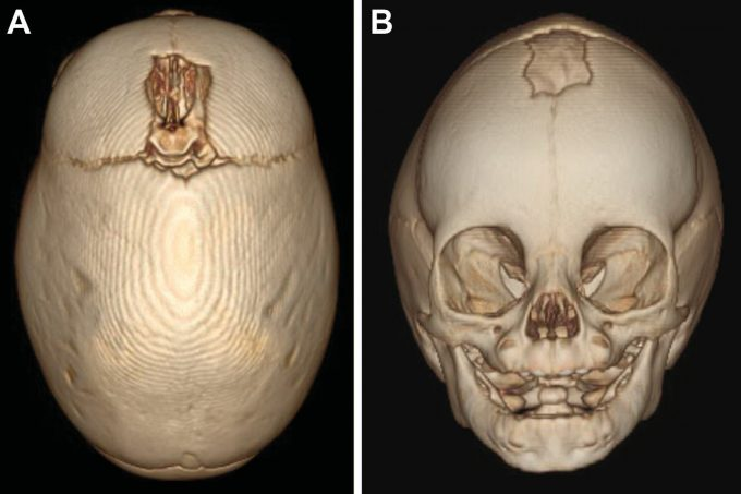 Example image of skull with sagittal craniosynostosis