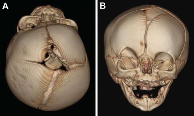 Example image of skull with unilateral coronal craniosynostosis